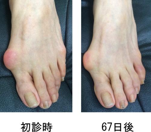 親指の付け根 腫れ 足