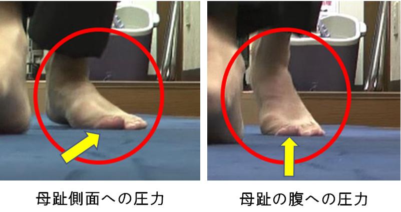 外反母趾の歩き方