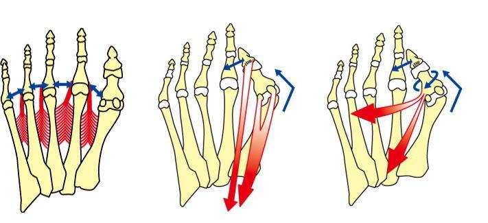 外反母趾変形と筋肉
