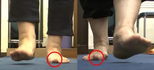 歩行時の反り母趾
