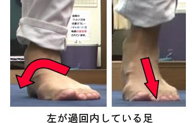 過回内の足