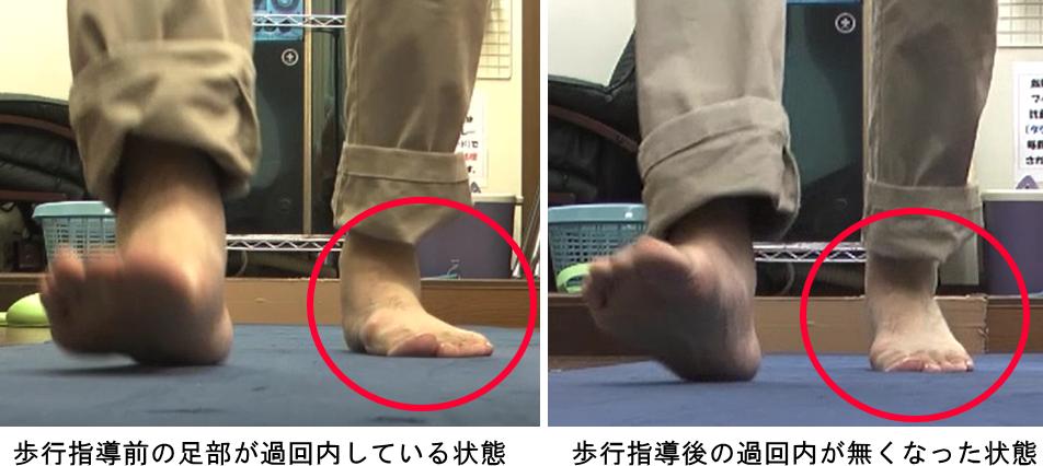 過回内歩行の改善