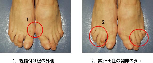 足のトラブル1