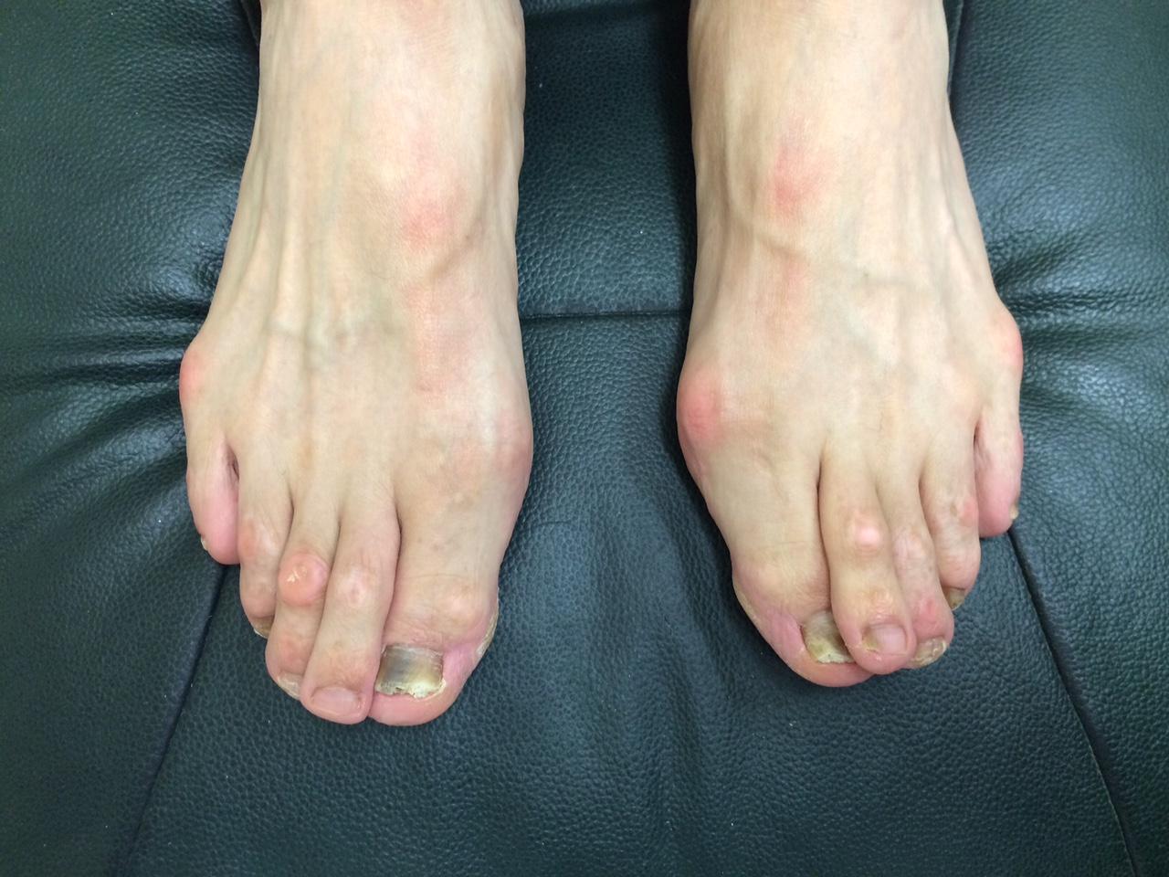 男性の外反母趾2