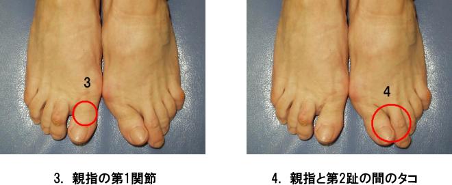 足のトラブル2