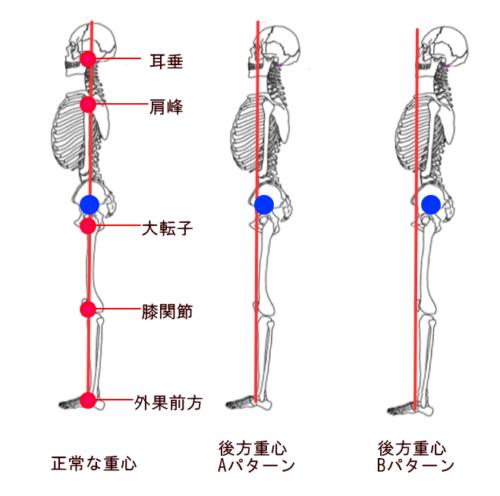 後方重心の比較図