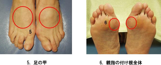 足のトラブル3