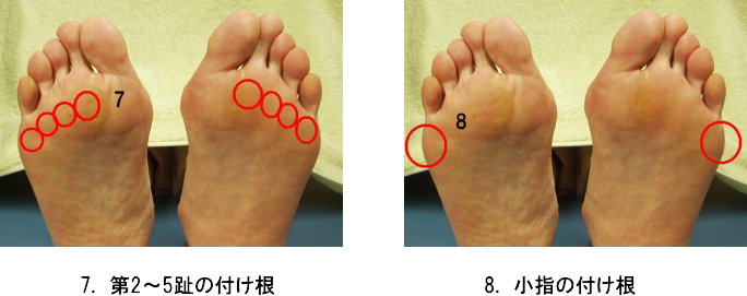 足のトラブル4