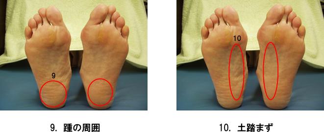 足のトラブル5