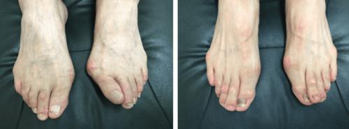 男性の外反母趾