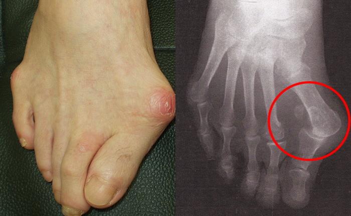 外反母趾のレントゲン