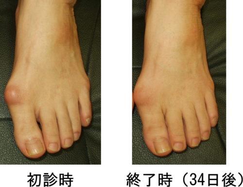 外反母趾改善例2