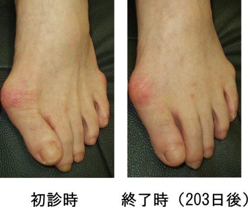 外反母趾改善例3