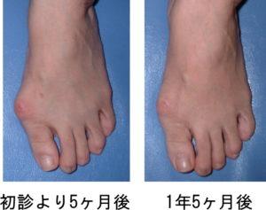 外反母趾改善例1