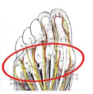 中足骨骨頭部