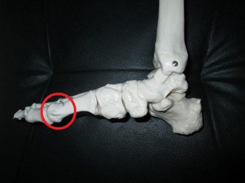 第一中足骨骨頭部