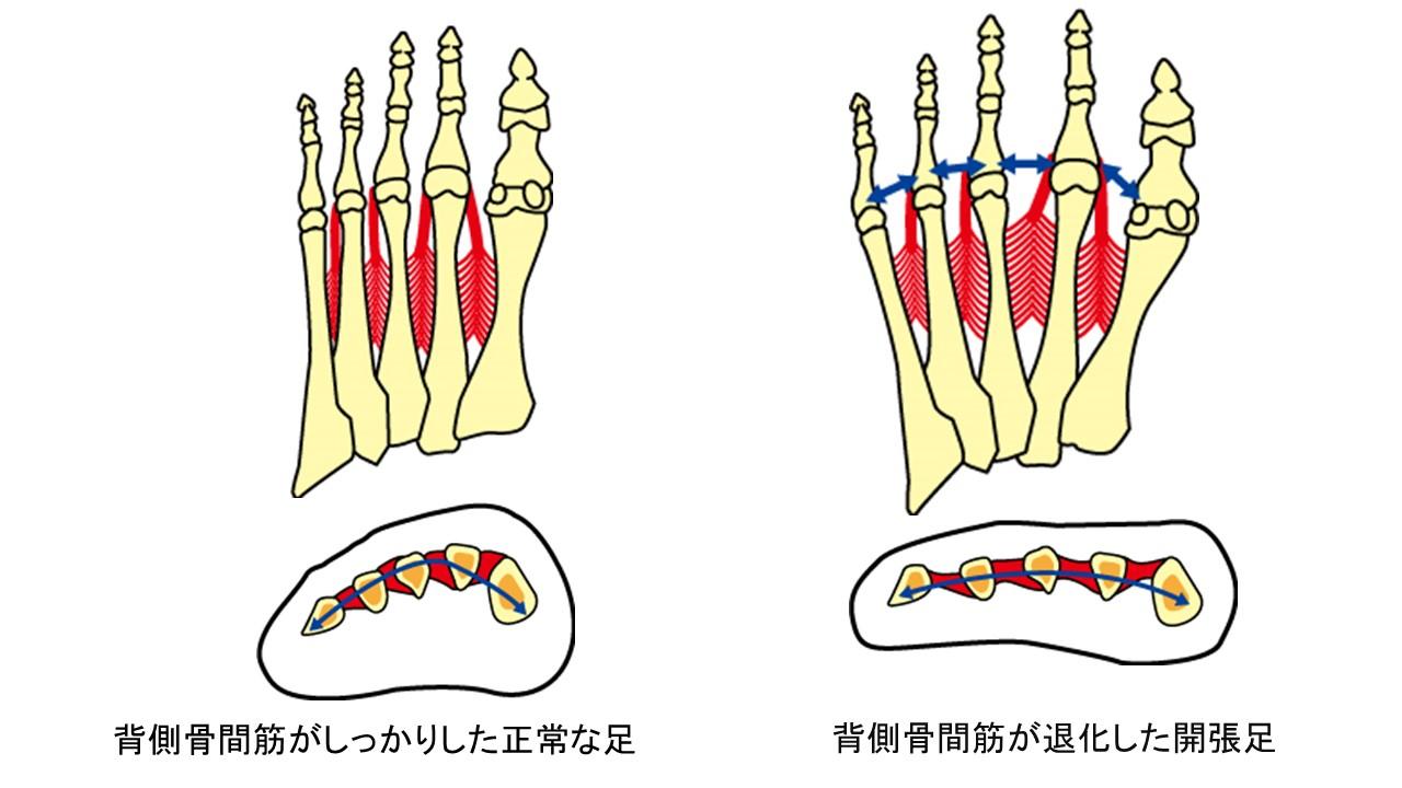 背側骨間筋と開張足