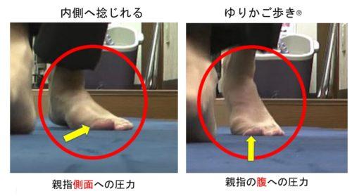 過回内による外反母趾の変形